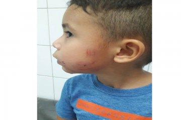 Un nene de 3 años fue mordido por un perro callejero y se abre el debate en La Criolla