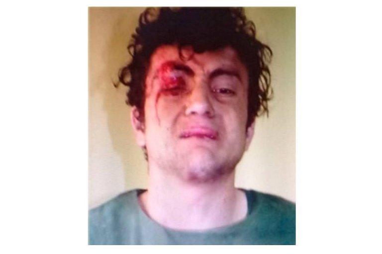 David Nuñez al momento de ser detenido