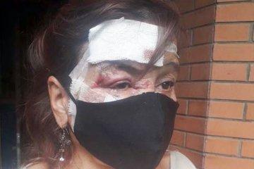 Detuvieron a dos personas que estarían implicadas con violento asalto a una mujer mayor